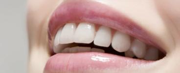 cosmetic dental finance