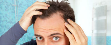 financing hair replacement